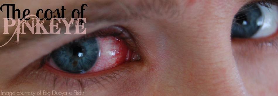 the cost of pinkeye