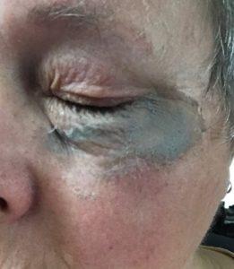 poison ivy paste under eye